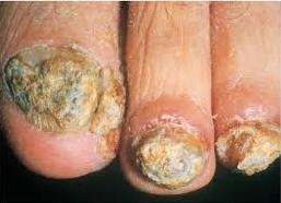 Le moyen de la lutte avec le microorganisme végétal des ongles